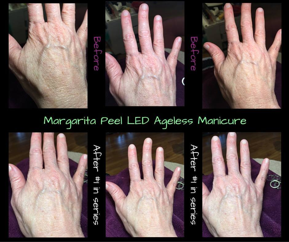 boca-raton-manicure-ageless-hands-skin-apeel