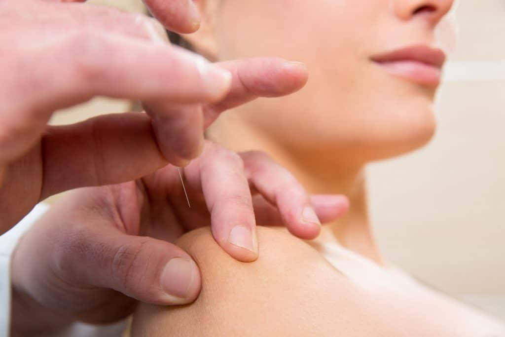 Acupuncture for stress relief benefits