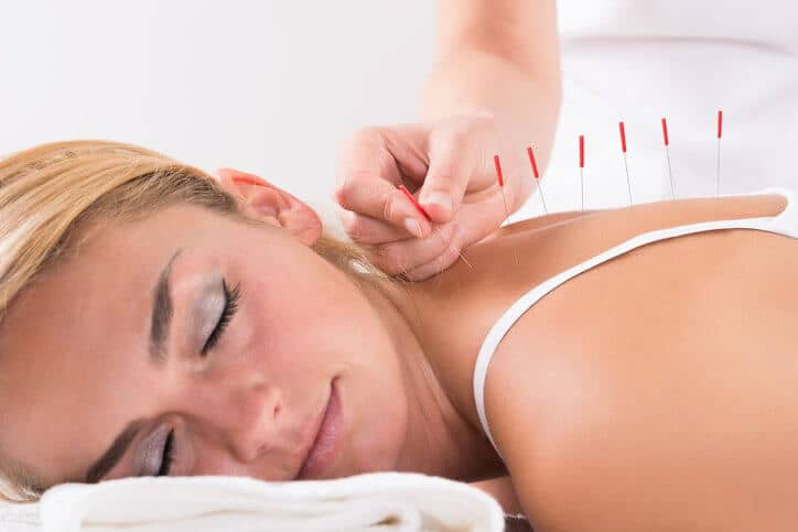The Benefits of Stress Relief Acupuncture