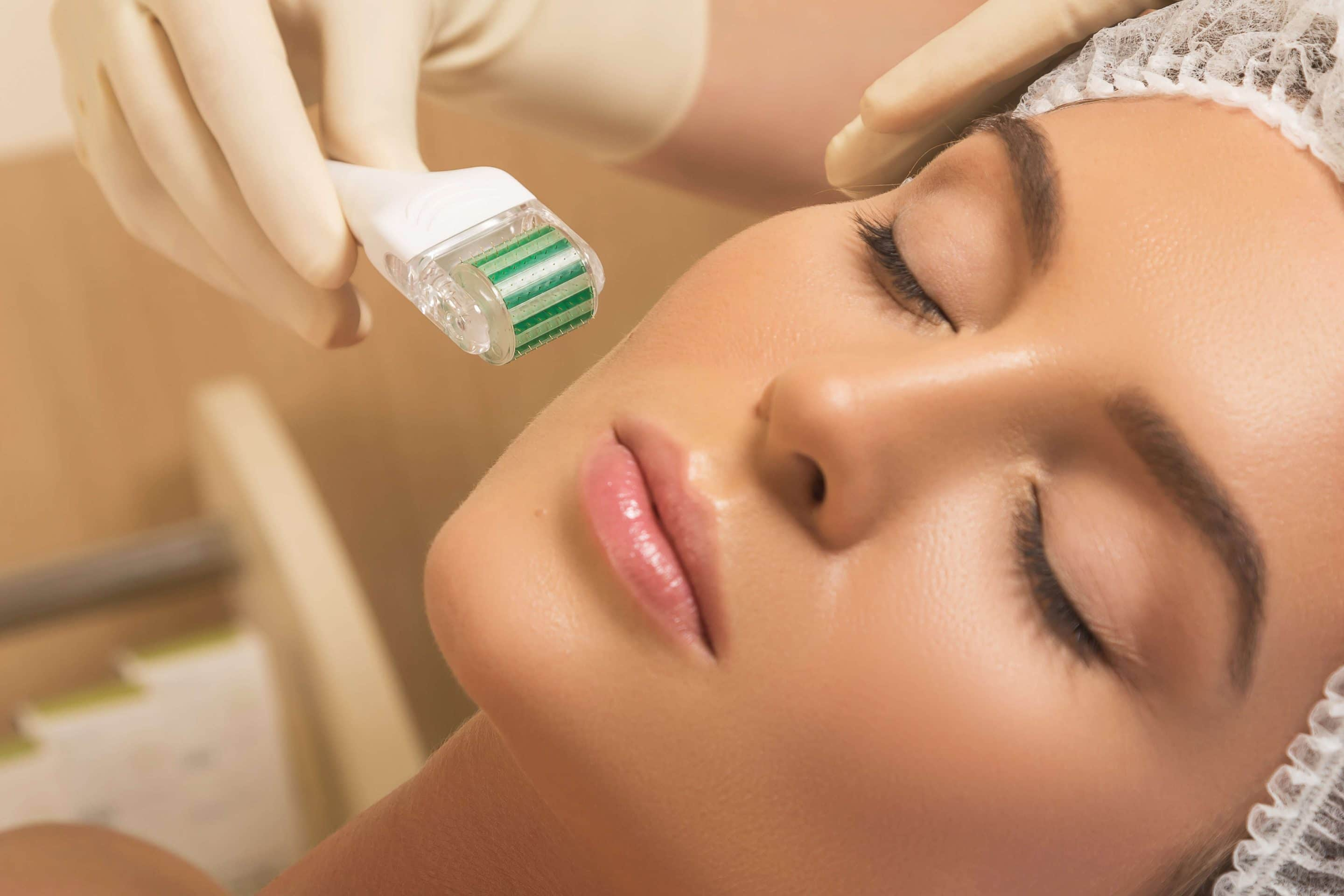 Microneedling: The Benefit to Aging Skin