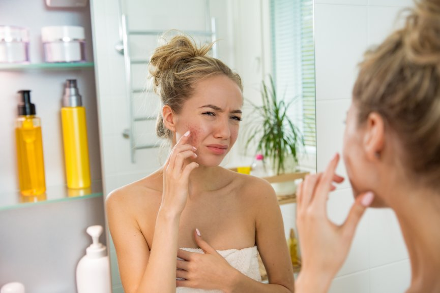 facials that help acne