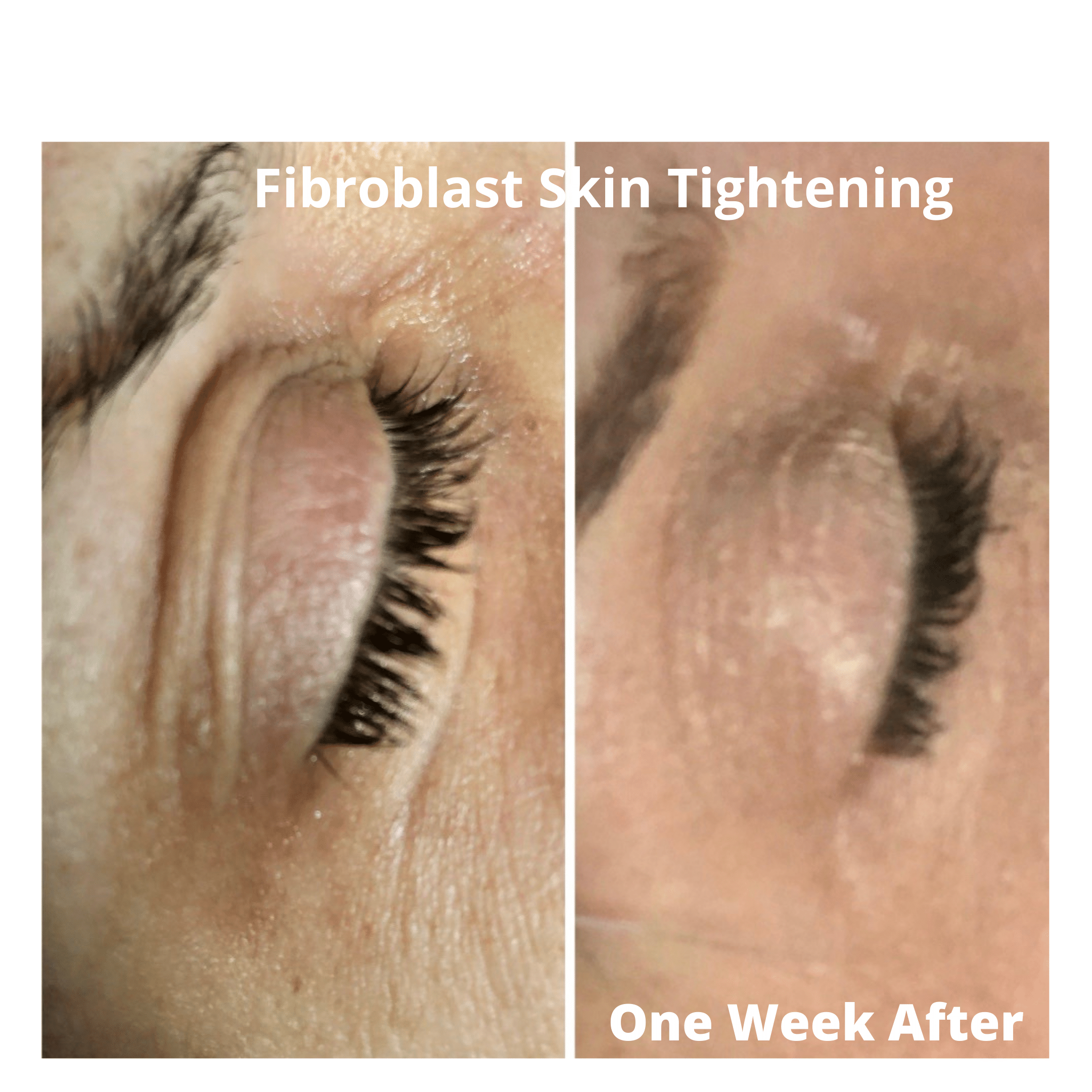 eye-lift-non-surgical-fibroblast-tightening-skin-apeel-boca-raton-prive-technique